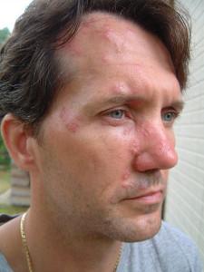Az övsömör jellegzetes bőrbetegség