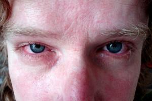 Az allergia lelki okainak felismerése